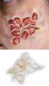 Theaterschminke FX Spezialeffekte Hautkrankheit Infektion Silikon Teil P5-3